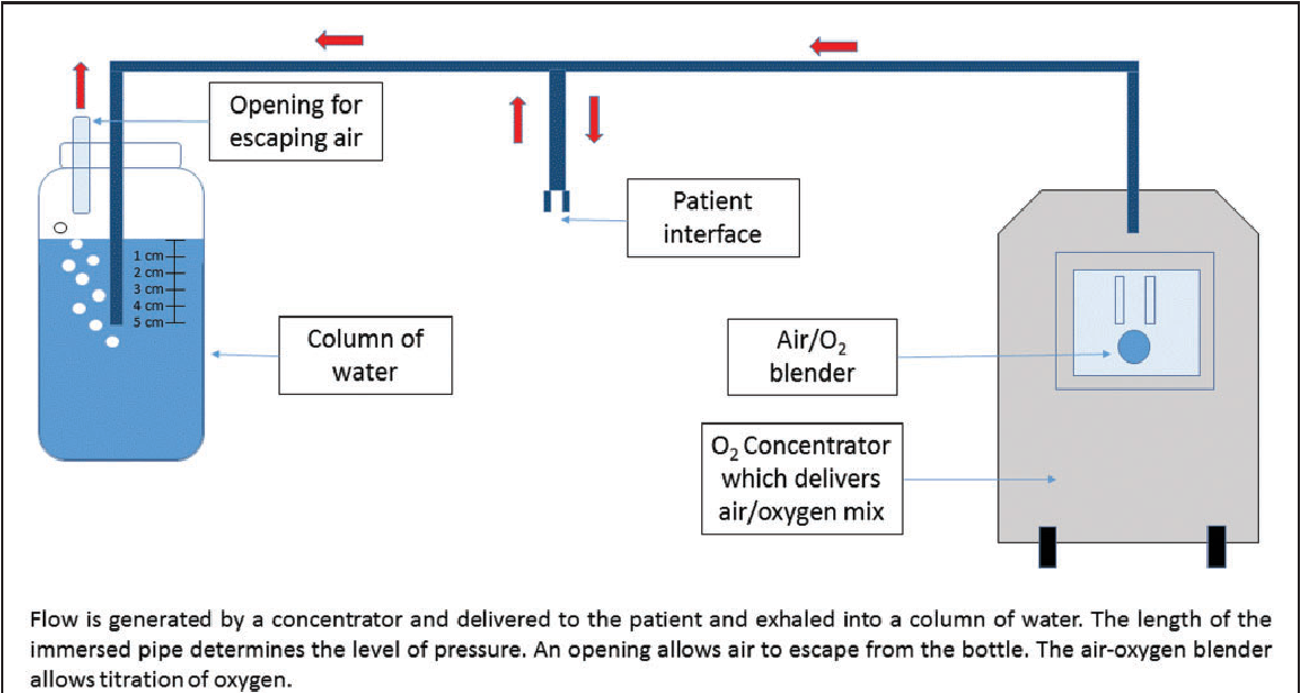 Figure 1 from Continuous positive airway pressure (CPAP) to treat