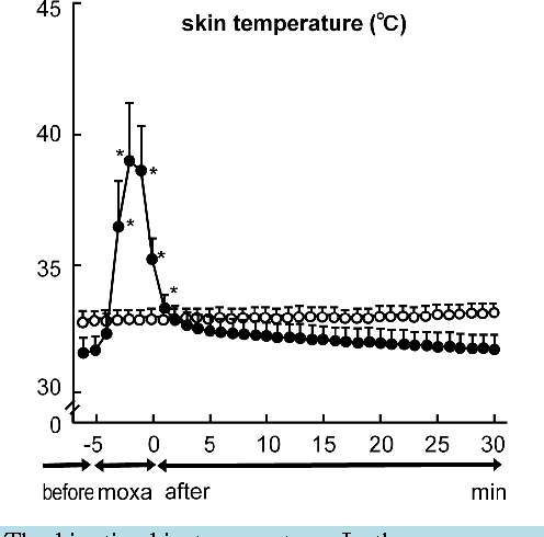 A Moxa Stimulation on the Leg Affected the Function of Stomach via ...