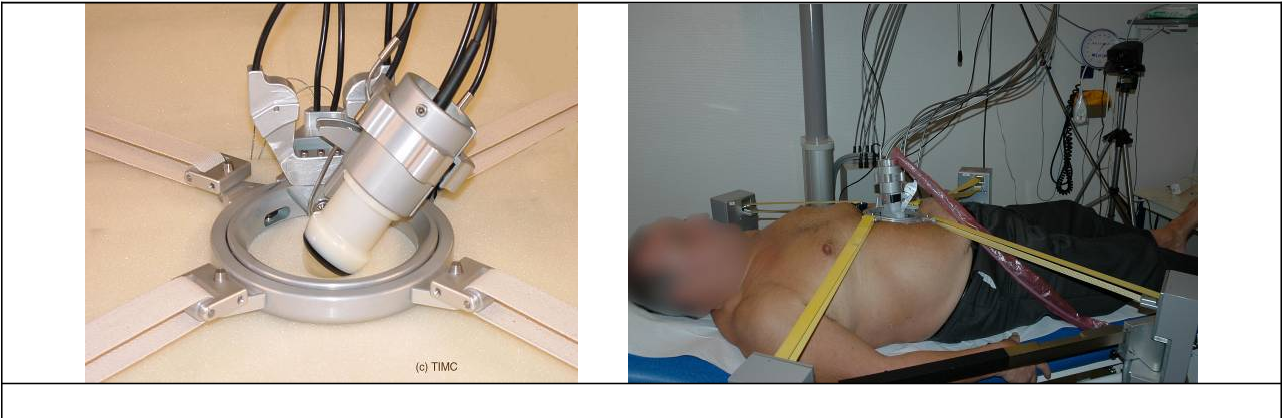 Figure 2 for TER: A Robot for Remote Ultrasonic Examination: Experimental Evaluations