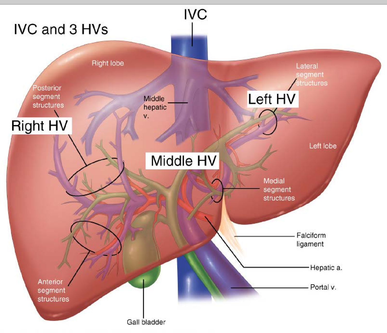 Figure 31-8 from AccessSurgery | Print: Chapter 31. Liver - Semantic ...
