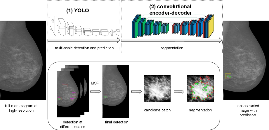 Figure 1 for Two-stage breast mass detection and segmentation system towards automated high-resolution full mammogram analysis