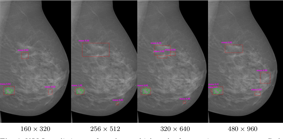Figure 2 for Two-stage breast mass detection and segmentation system towards automated high-resolution full mammogram analysis