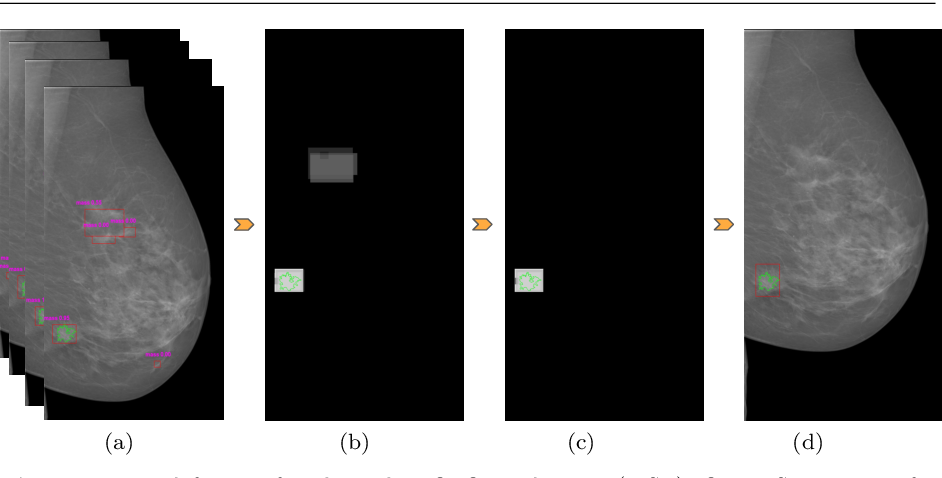 Figure 4 for Two-stage breast mass detection and segmentation system towards automated high-resolution full mammogram analysis