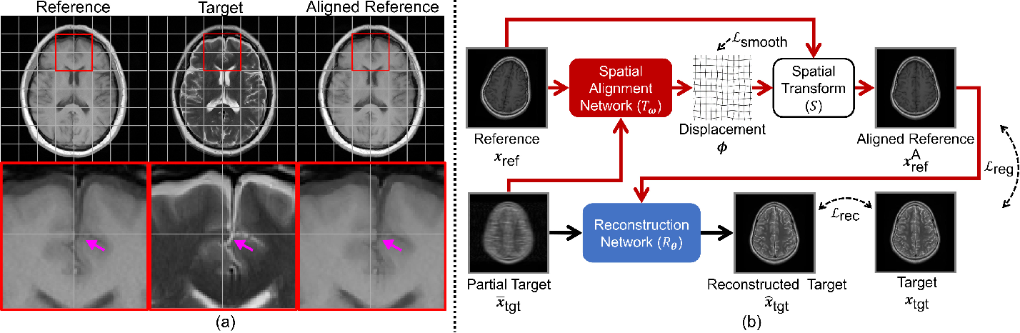 Figure 1 for Multi-Modal MRI Reconstruction Assisted with Spatial Alignment Network
