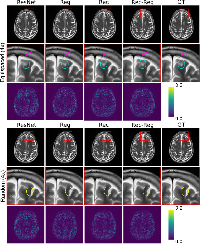 Figure 4 for Multi-Modal MRI Reconstruction Assisted with Spatial Alignment Network