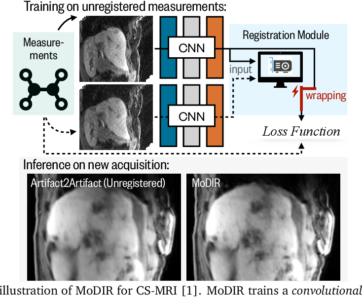 Figure 1 for MoDIR: Motion-Compensated Training for Deep Image Reconstruction without Ground Truth