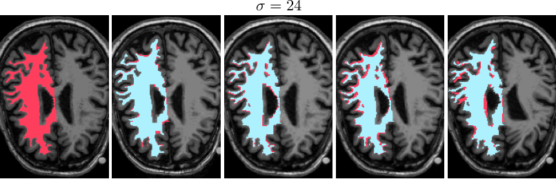 Figure 3 for MoDIR: Motion-Compensated Training for Deep Image Reconstruction without Ground Truth