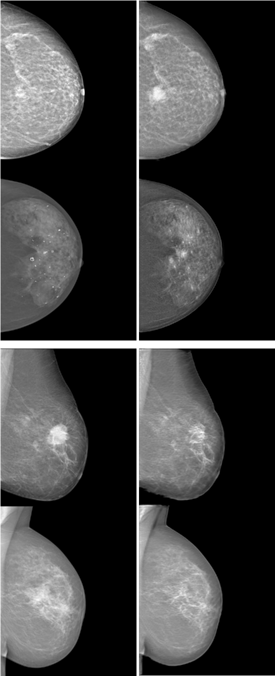 Figure 3 for Injecting and removing malignant features in mammography with CycleGAN: Investigation of an automated adversarial attack using neural networks