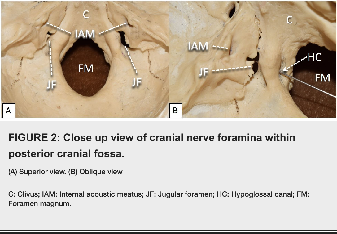 Cranial Nerve Foramina: Part II – A Review of the Anatomy and ...