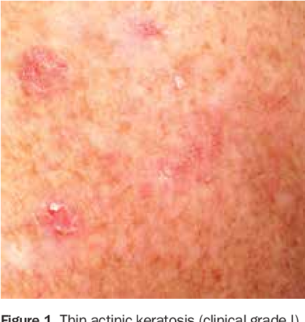 PDF] A GP's guide to actinic keratosis - Semantic Scholar