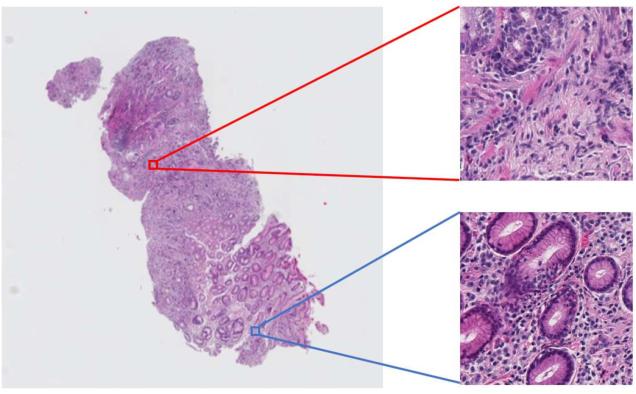 Figure 1 for Multi-Stage Pathological Image Classification using Semantic Segmentation