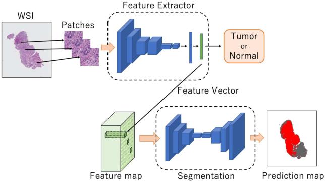 Figure 3 for Multi-Stage Pathological Image Classification using Semantic Segmentation