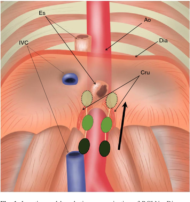Figure 1 from retrocrural lymph node metastasis disclosed by 18f 1 location and lymphatic communication of rclns diagram of rclns green ccuart Image collections