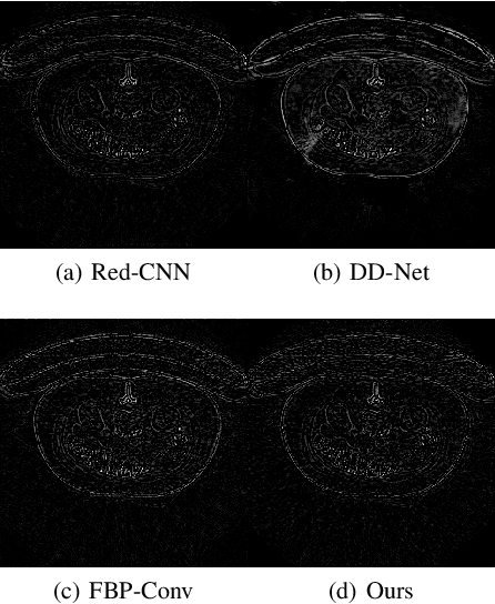 Figure 3 for A deep network for sinogram and CT image reconstruction