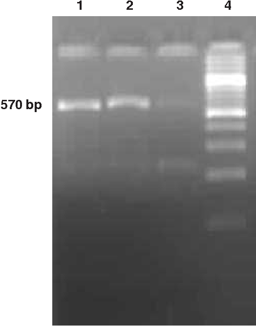 Fig. 1: Amplified bovine genomic DNA with specific primers for BLAD separated by electrophoresis on 2.5% agarose gel Lines 1-2: 570 bp amplicon of ITGB2 gene Line 2: Non template control Line 3: Molecular size marker (100bp DNA Step Ladder).