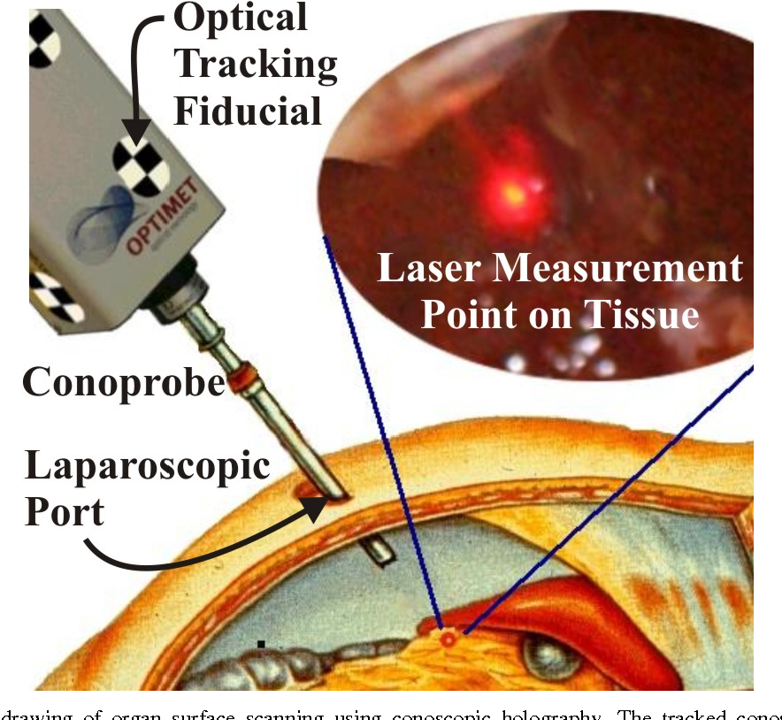 Figure 2. Conceptual drawing of organ surface scanning using conoscopic holography. The tracked conoscope returns distance measurements, which are converted to a point cloud that defines the shape of the tissue surface.
