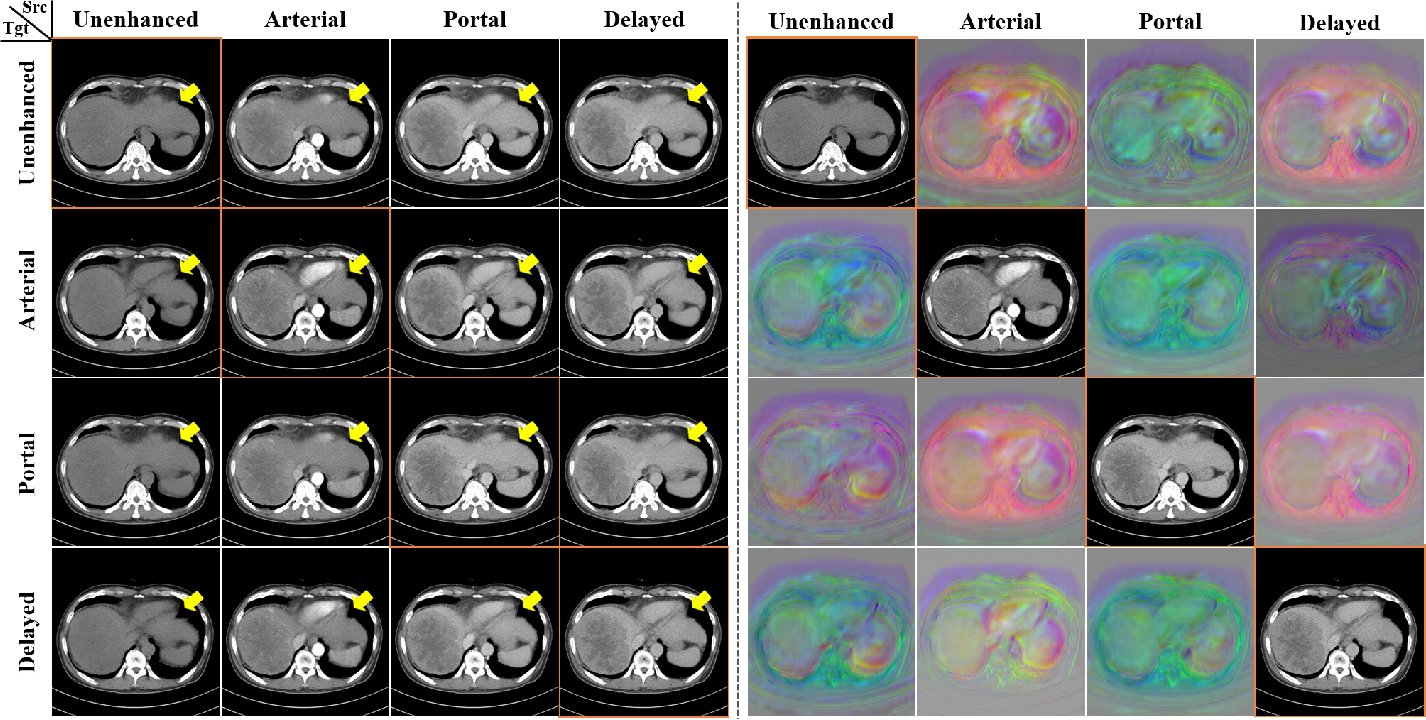 Figure 2 for CycleMorph: Cycle Consistent Unsupervised Deformable Image Registration