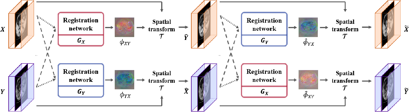 Figure 4 for CycleMorph: Cycle Consistent Unsupervised Deformable Image Registration