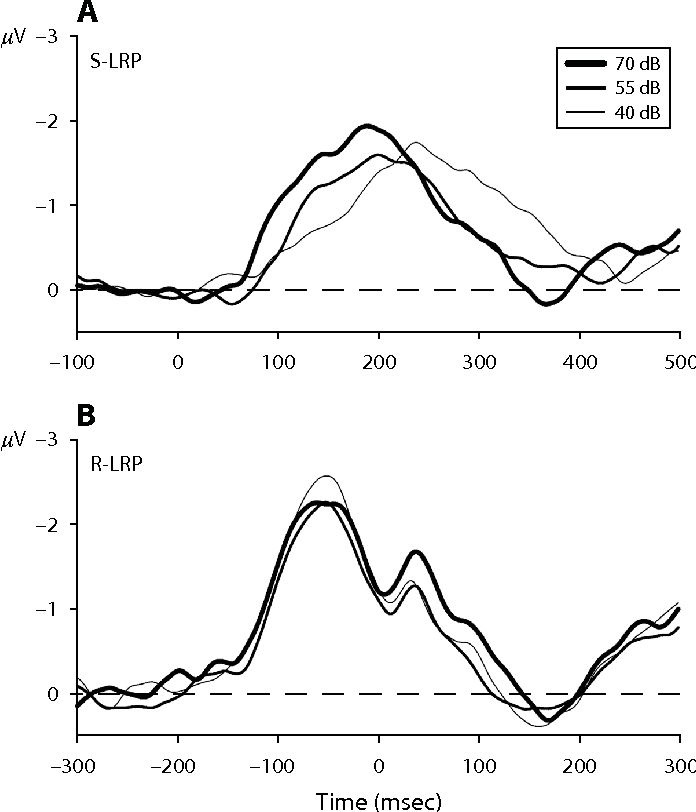 Locus Of The Intensity Effect In Simple Reaction Time Tasks