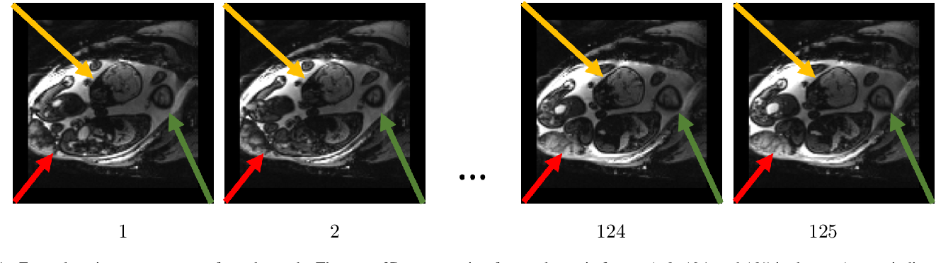 Figure 1 for Temporal Registration in Application to In-utero MRI Time Series