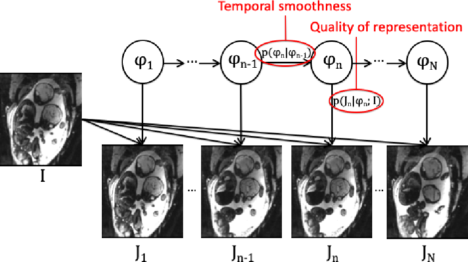 Figure 2 for Temporal Registration in Application to In-utero MRI Time Series