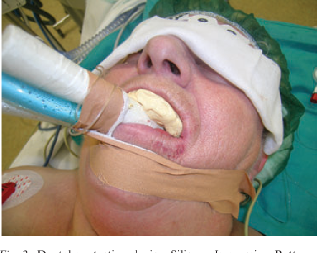 Figure 2 from Traumatic dental injuries during anaesthesia
