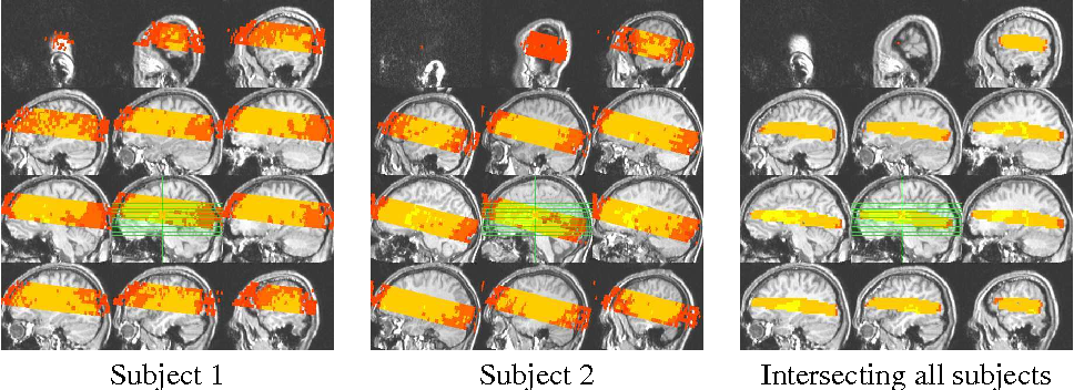 Figure 1: The two leftmost panels show in color the scanned portion of the brain for two subjects (Syntactic Ambiguity study) in Talairach space in sagittal view. The rightmost panel shows the intersection of these scanned bands across all five subjects.