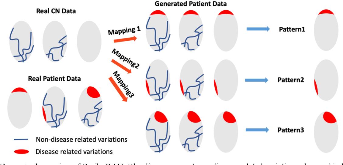 Figure 1 for Disentangling brain heterogeneity via semi-supervised deep-learning and MRI: dimensional representations of Alzheimer's Disease