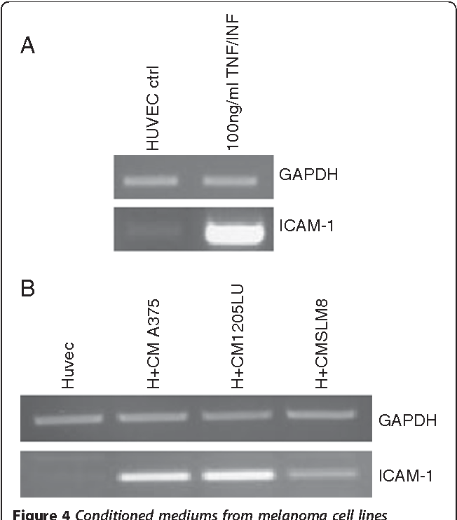 Figure 4 Conditioned mediums from melanoma cell lines enhance transcript expression of ICAM-1 in HUVEC cells. Semi-quantitative PCRs were performed to detect expression of ICAM-1 transcripts. A HUVEC cells were treated either with TNF-α and IFN-γ at 100ng/ml or B with conditioned medium from A375 (H+A375), SLM8 (H+SLM8) and 1205LU (H+1205LU) after 48hrs of cell culture. GAPDH is used as a DNA amount control. Data were obtained from 3 independent experiments.
