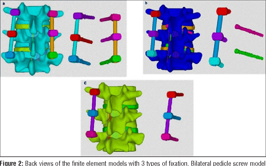 Finite Element Analysis Of 3 Posterior Fixation Techniques In The