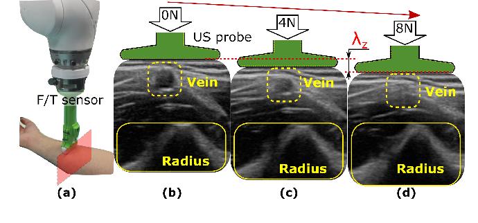 Figure 1 for Deformation-Aware Robotic 3D Ultrasound