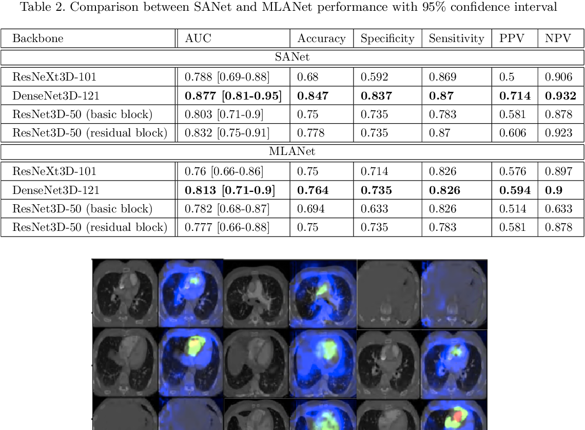 Figure 4 for Weakly Supervised Attention Model for RV StrainClassification from volumetric CTPA Scans