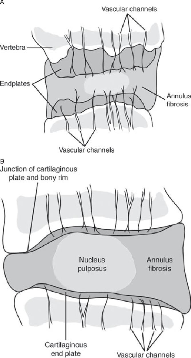 Intervertebral disc: anatomy-physiology-pathophysiology-treatment ...
