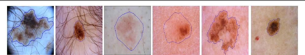 Figure 1 for Semi-supervised Skin Lesion Segmentation via Transformation Consistent Self-ensembling Model