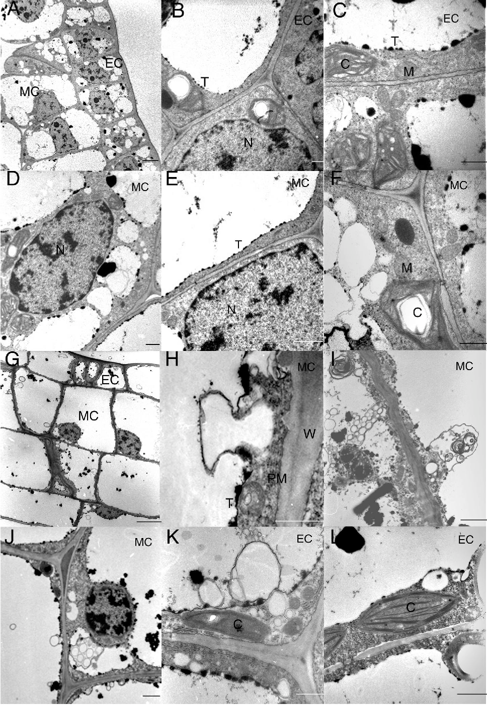 Figure 7. Transmission Electron Micrographs of Tissue from Perforation Sites and Adjacent Control Tissue at Stages 1 and 2.