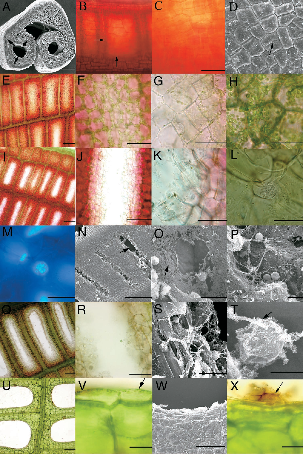 Figure 2. Light Micrographs of Living Leaves and Scanning Electron Micrographs of Fixed Tissue Illustrating the Stages of Perforation Formation in Lace Plant.