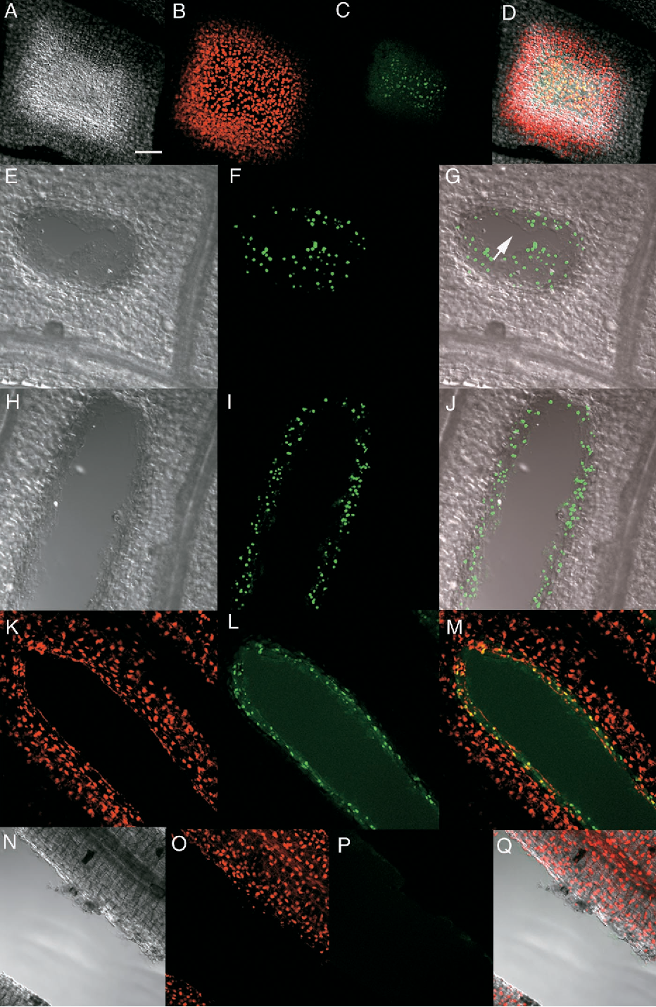 Figure 4. Confocal Microscopy and Differential Interference Contrast Microscopy Showing Detection of DNA Cleavage by TUNEL Assay.