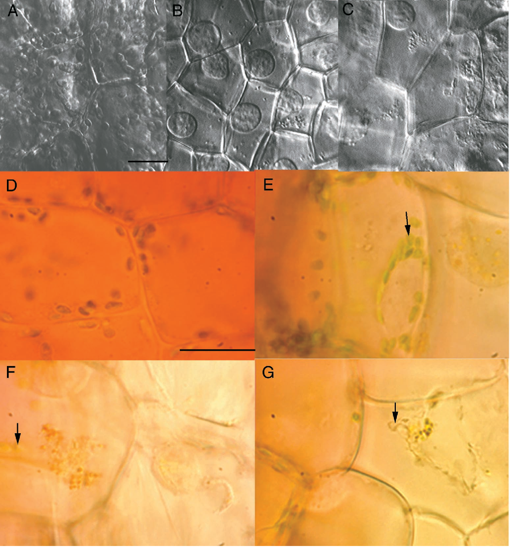 Figure 6. Light Micrographs Showing Changes in Cytoplasm during PCD.