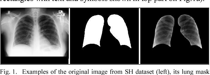 Figure 1 for Chest X-Ray Analysis of Tuberculosis by Deep Learning with Segmentation and Augmentation