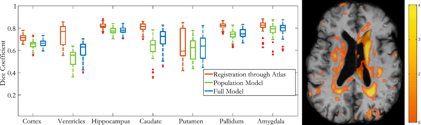 Figure 2 for Predictive Modeling of Anatomy with Genetic and Clinical Data