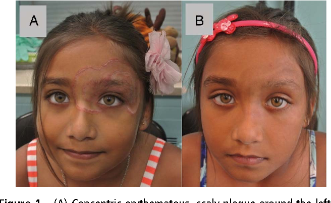 Figure 1 from An unresponsive rash to topical steroids: tinea