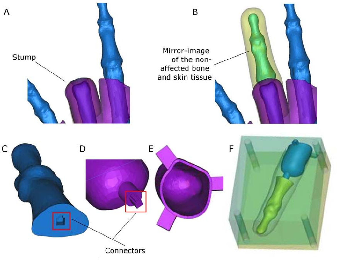 Figure 3 for Patient-Specific Prosthetic Fingers by Remote Collaboration - A Case Study