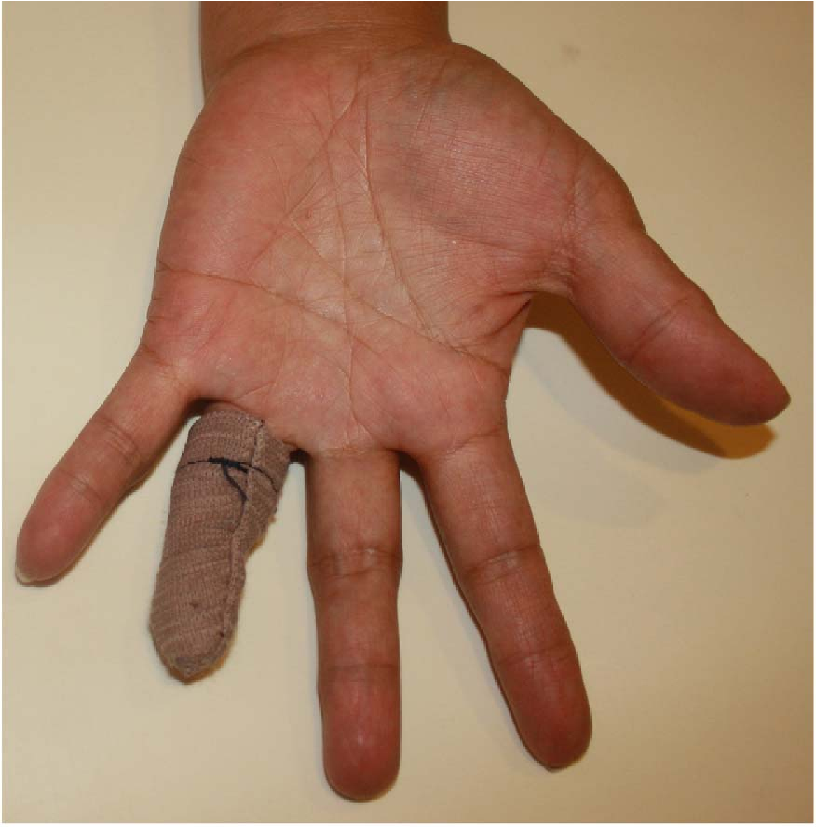 Figure 1 for Patient-Specific Prosthetic Fingers by Remote Collaboration - A Case Study