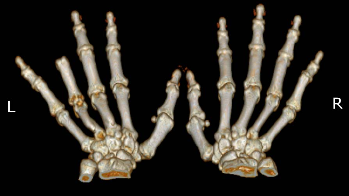 Figure 2 for Patient-Specific Prosthetic Fingers by Remote Collaboration - A Case Study