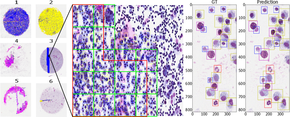Figure 2 for Learning to be EXACT, Cell Detection for Asthma on Partially Annotated Whole Slide Images