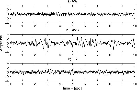 Figure 1 from EMD-based Analysis of Rat EEG Data for Sleep State