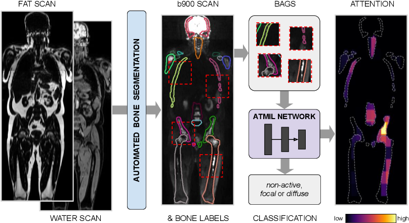 Figure 1 for Multiple Instance Learning with Auxiliary Task Weighting for Multiple Myeloma Classification