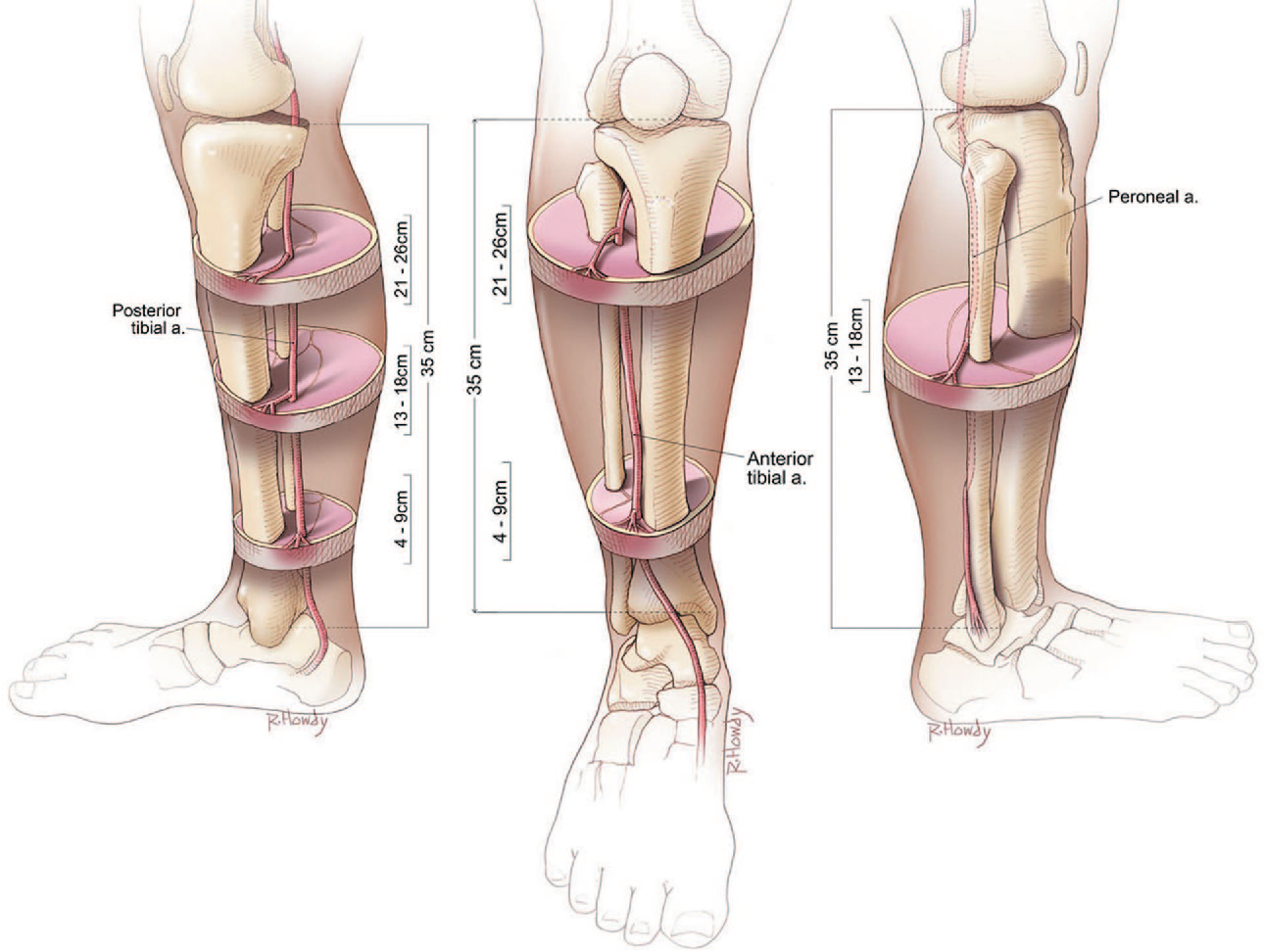 Structure of anterior tibial artery - Semantic Scholar