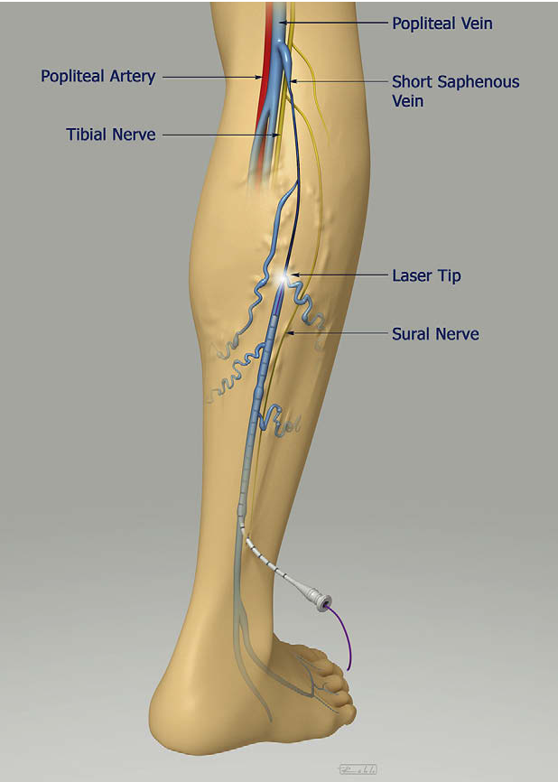Endovenous Laser Ablation Of The Small Saphenous Vein Prospective
