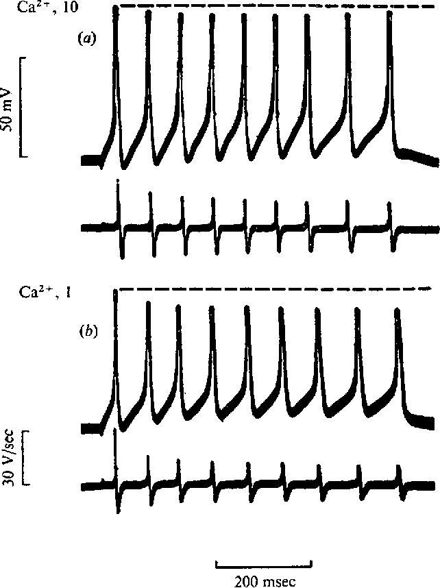 Fig. 4. Repetitive firing pattern in Ringer solution with 10 HIM Ca2+ (a) and Ringer solution with 1 mM Ca2+ (b). Upper traces, membrane potential; lower traces, rate of change of potential. Peak level of the first action potential is indicated by dashed line.